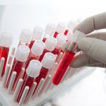 Причины и потенциальные опасности выделений с примесью крови при беременности