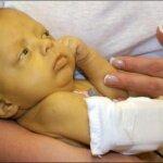 Желтуха у новорожденных: механизм происхождения, симптомы, как лечить